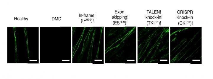 iPS cells used to correct genetic mutations that cause muscular dystrophy