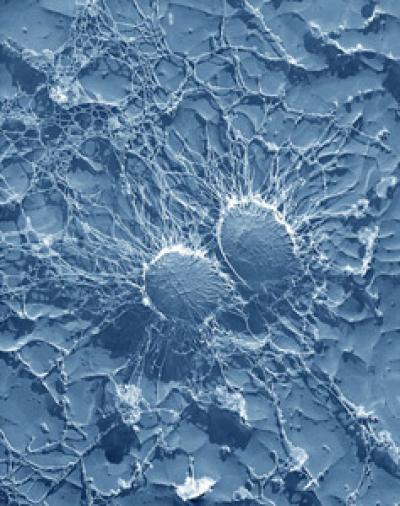 Hormone plays surprise role in fighting skin infections