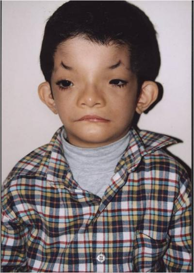Human genetic disorders...?