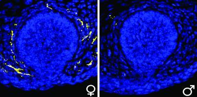 His and hers: Male hormones control differences in mammary gland nerve growth
