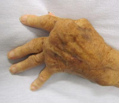 Genes and their regulatory 'tags' conspire to promote rheumatoid arthritis