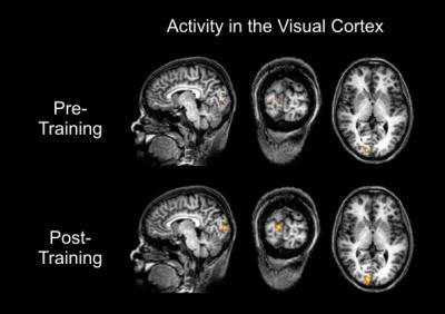 Learning to control brain activity improves visual sensitivity
