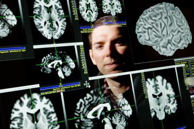 One gene influences recovery from traumatic brain injury