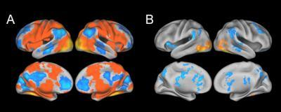 Researchers find neural compensation in people with Alzheimer's-related protein
