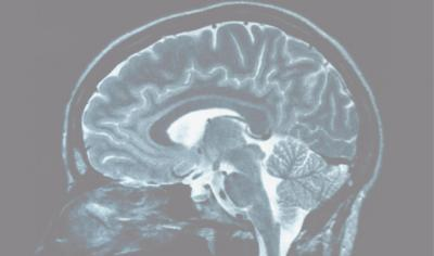 Positive, negative thinkers' brains revealed