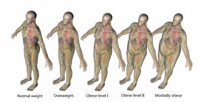 Obese patients face higher radiation exposure from CT scans -- but new technology can help