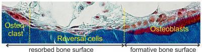 Reversal cells may tip the balance between bone formation and resorption in health and disease