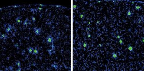 Boosting the brain's waste disposal system
