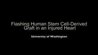 Heart muscle cell grafts suppress arrhythmias  after heart attacks in animal study