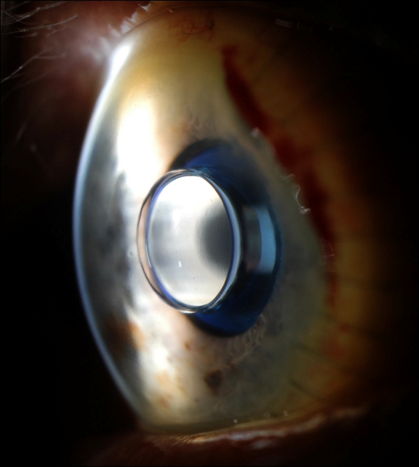 Bionic Implant Restores Eyesight In Patient With Macular Degeneration