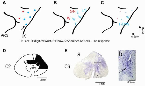 Restoration of upper limb movement in a monkey with spinal cord injury