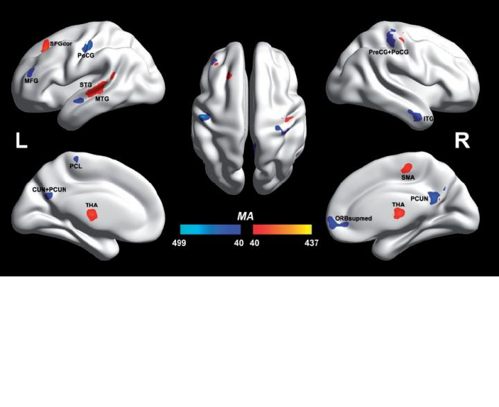 Autistic and non-autistic brain differences isolated