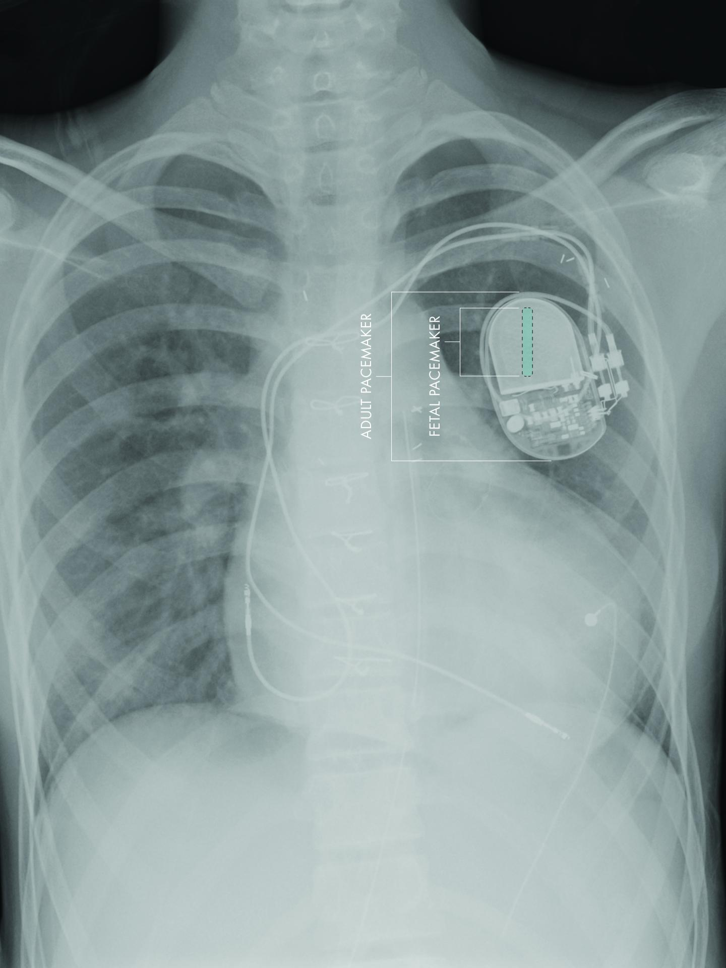 First fully-implantable micropacemaker designed for fetal use