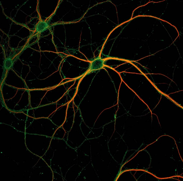 Scientists discover how the brain encodes memories at a cellular level