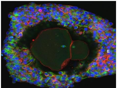 Scientists grow human eggs to full maturity in a lab